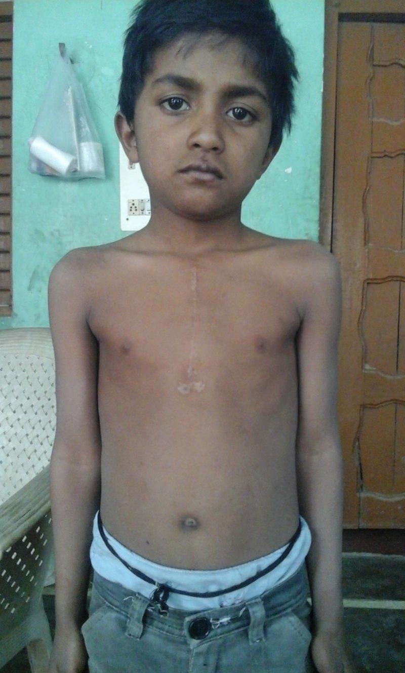 Save The Life of Pawan